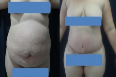ABDOMINOPLASTIA O LIPECTOMIA 1.1