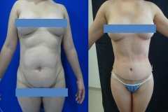 ABDOMINOPLASTIA O LIPECTOMIA 2.2