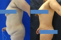 ABDOMINOPLASTIA O LIPECTOMIA 3.1