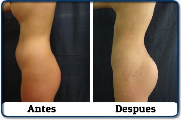 HdV26 clinica colombiana de obesidad