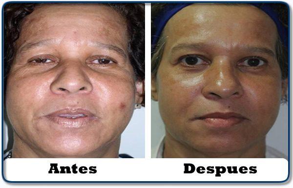 HdV14 clinica colombiana de obesidad